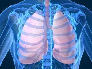 LUNGS - FREE MS image