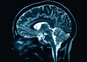 MRI OF BRAIN - FREE MS